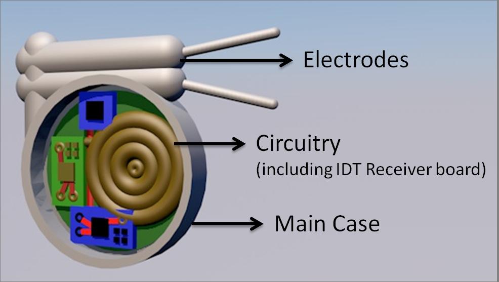Pacemaker enclosure diagram 0aramlawrr